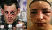 Diego Sanchez Face Must Hurt (Pic)
