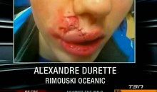 Marco Scandella's Cheap Shot Leaves Alexandre Durette's Face Battered