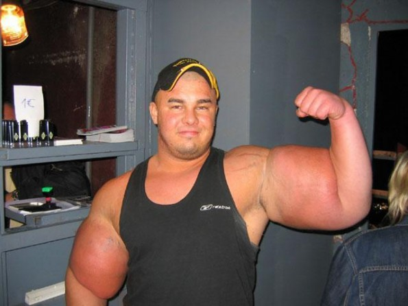 Synthol addict - all girls will admire him