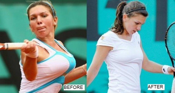 simona halep before and after