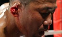 Shigeyuki Uchiyama Loses His Ear During MMA Bout