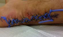 Achilles Shoelace (Pic)