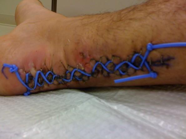 Achilles shoelace