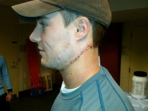 Will Weber Has Neck Sliced By Skate