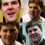 A Progressive Look At Ben Lovejoy's Battered Face (Pic + Vid)