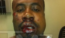 Cedric Benson Beat The Crap Out Of His Roommate's Face (Pic)