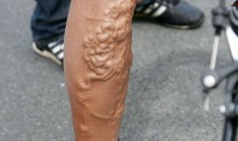 Picture Of The Day: Is That A Brain In George Hincapie's Leg?