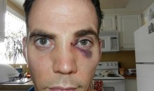 Steve-O Broke His Nose On Mike Tyson's Fist (Video)