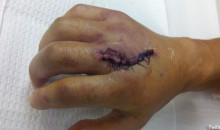 Picture Of The Day: Dominick Cruz's Broken Hand