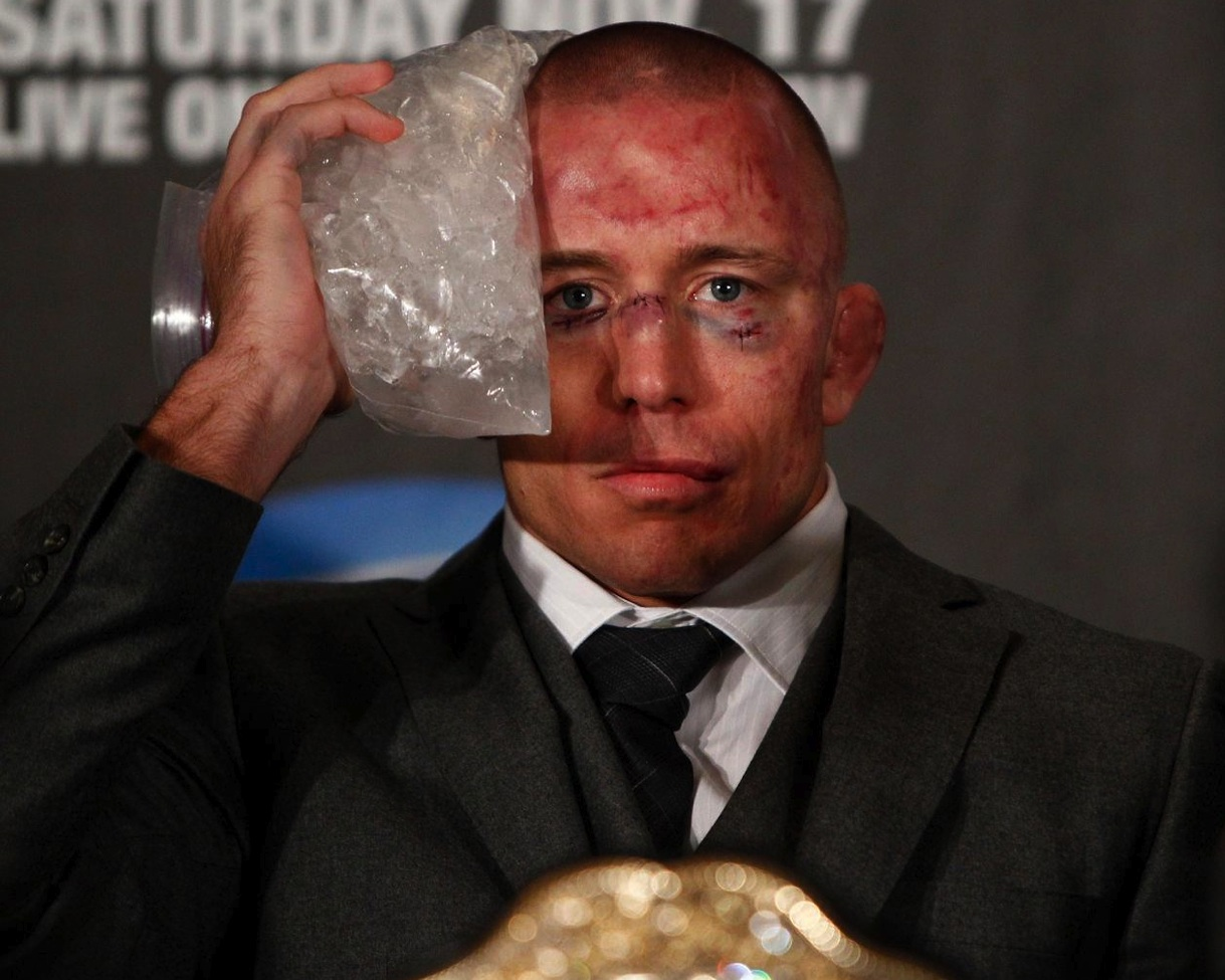 GSP's Post Fight Face