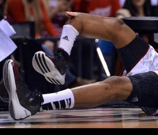 Kevin Ware Louisville Cardinals Broken leg gruesome injury