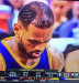 http://www.totalprosports.com/wp-content/uploads/2011/12/Lebrons-Hair-Transplant-Is-Coming-In-Perfectly-395x410.png
