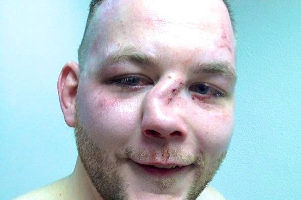 MMA Fighter's Broken Nose