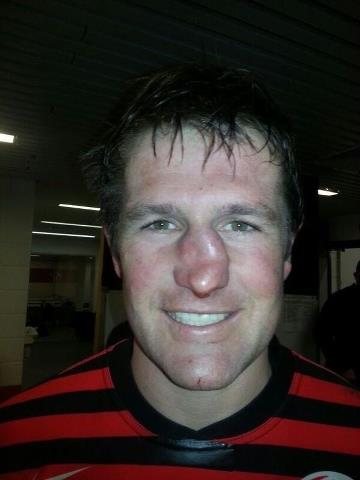 Rugby Player Broken Nose