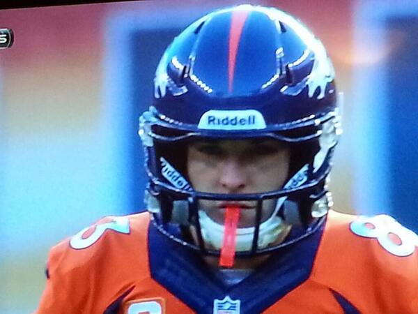 Welker's Specialized Helmet