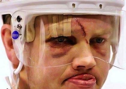 mats sundin hockey scar