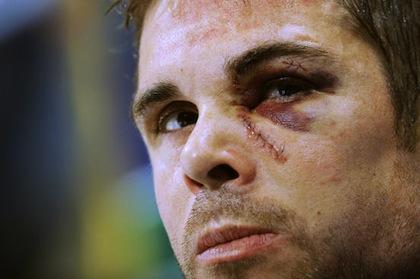 willie mitchell kings hockey scar