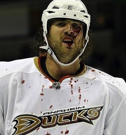 aaron voros bloody hockey face