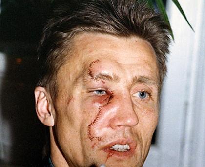 borje salming hockey scar