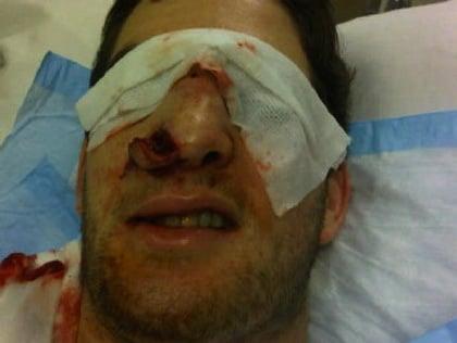 darryl boyce hockey nose injury