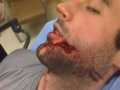 ryan o'byrne gruesome hockey injury