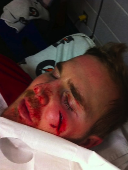 james-wisniewski-face-puck bloody hockey injury