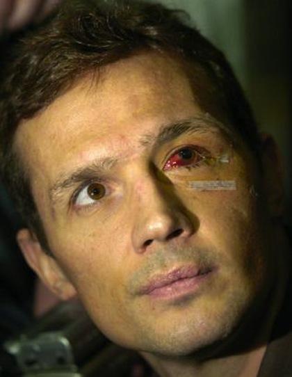 steve yzerman bloody eye hockey