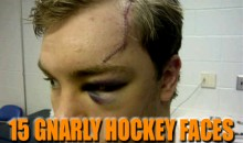 15 Gnarly Hockey Faces