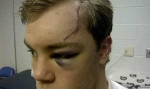 Here's Taylor Hall's Face After Being Cut By A Skate Blade (Pic)