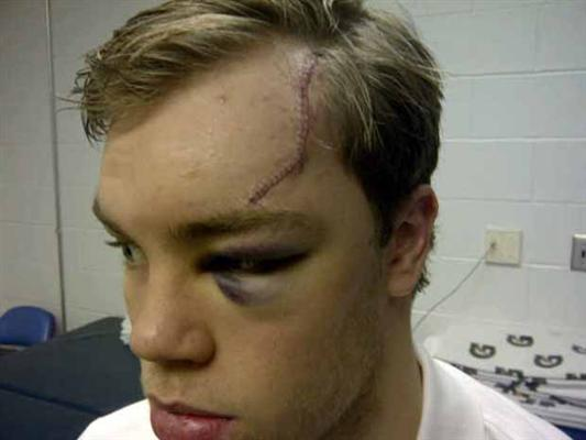 taylor hall eye injury
