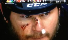 Panthers' John Madden Smashes Face During Collision With Teammate (Video)