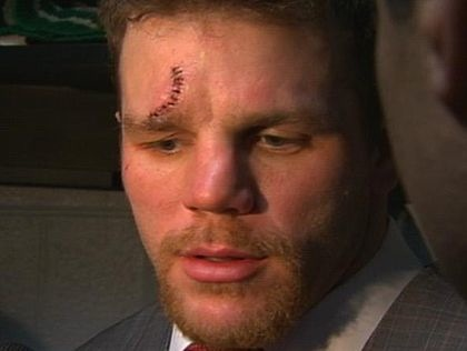 shawn thornton stiches