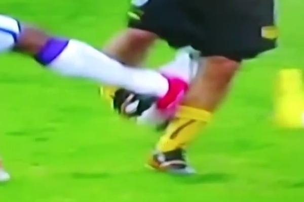 gruesome soccer injury leg break