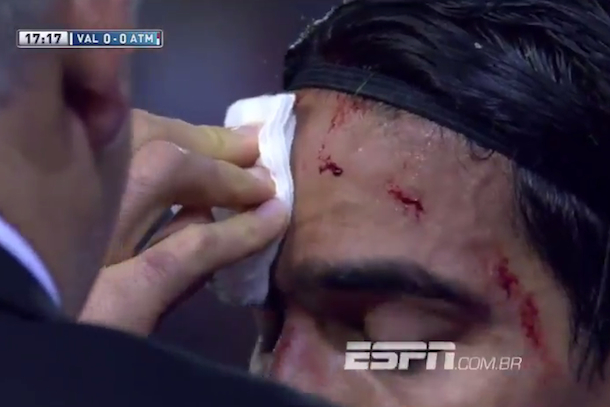 Radamel Falcao kicked in face with cleats