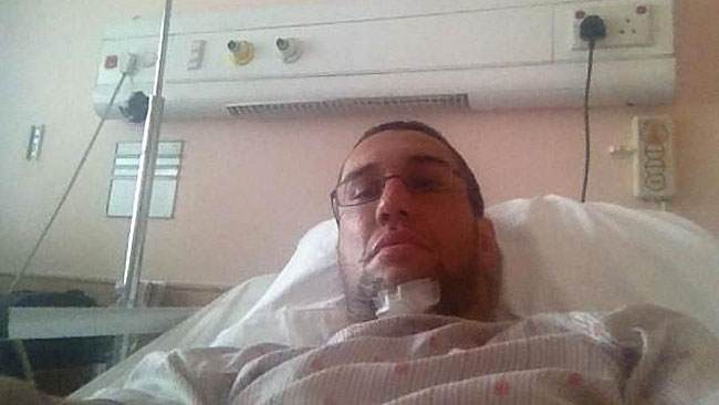 ray elbe penis fracture injury