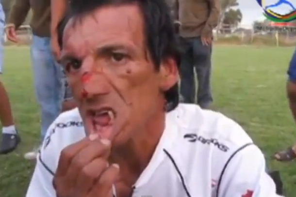 soccer referee teeth kicked out