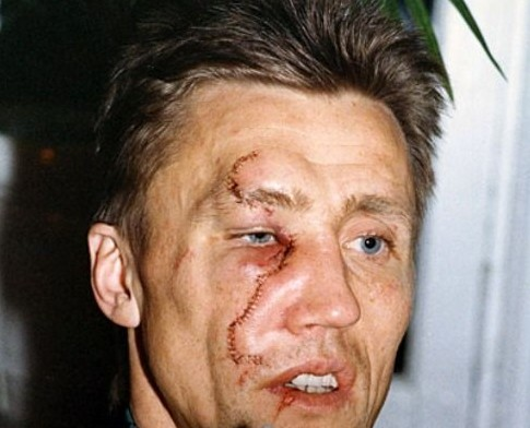 borje salming (maple leafs) - most gruesome sports injuries