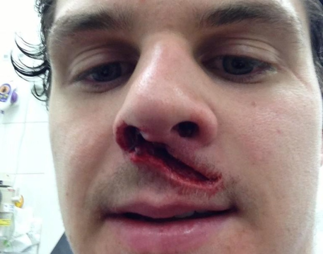 craig peacock (britich hockey player) - most gruesome sports injuries