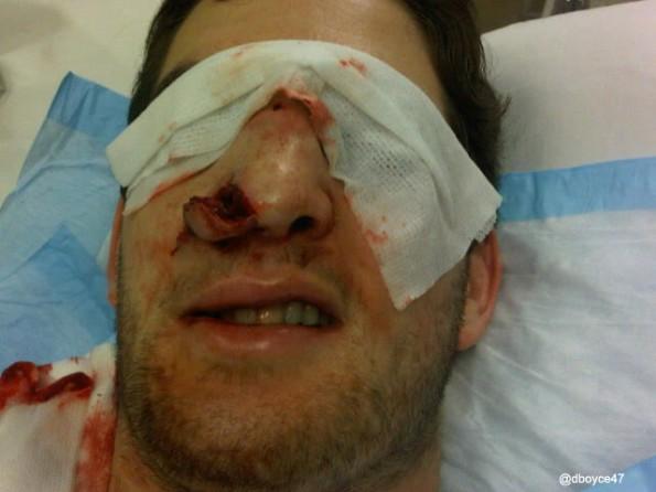darryl-boyce-face - gruesome sports injuries