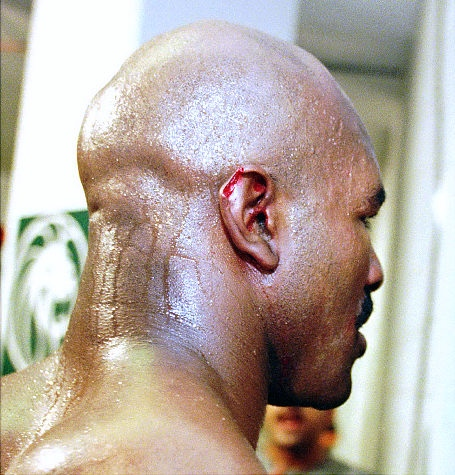 evander holyfield ear bite - most gruesome sports injuries