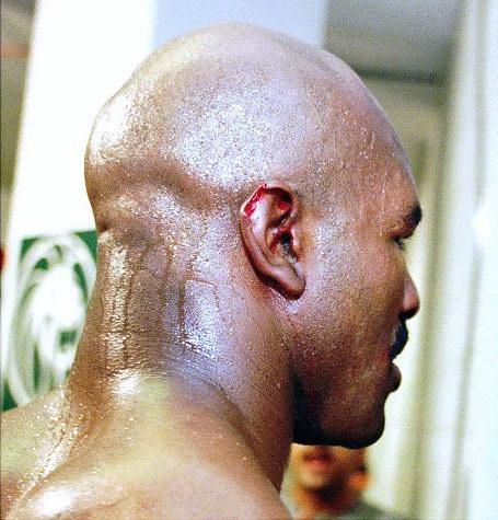 evander holyfield ear bite - most gruesome sports injuries