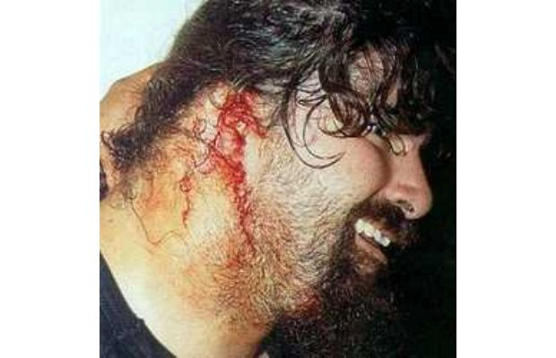 mick foley no ear - most gruesome sports injuries