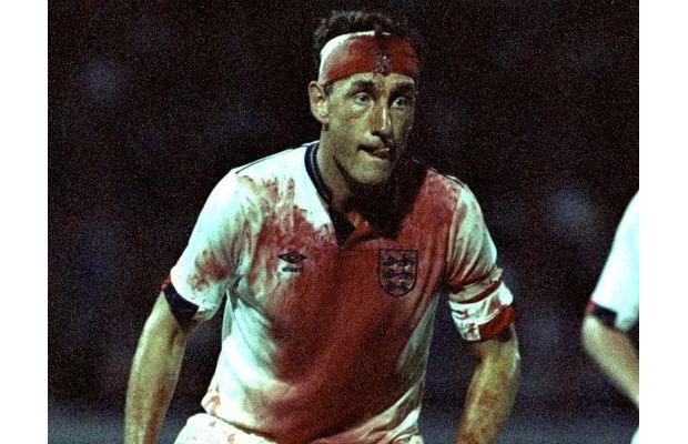 terry butcher head laceration 1989 - most gruesome sports injuries