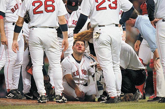 bryce florie hit by line drive bloody face