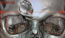 Disturbing Image: Mark Fraser's CT Scan After Taking Slap Shot to the Face (Photo)