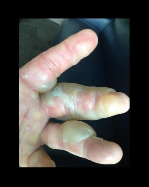 hulk hogan burned hand 1