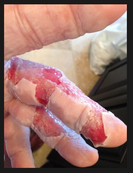 hulk hogan burned hand 2