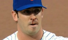 Not Even a Nose Bleed Could Distract Mets Pitcher Matt Harvey from Being Awesome Last Night (Video)
