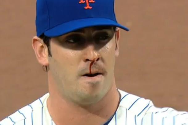 matt harvey nose bleed