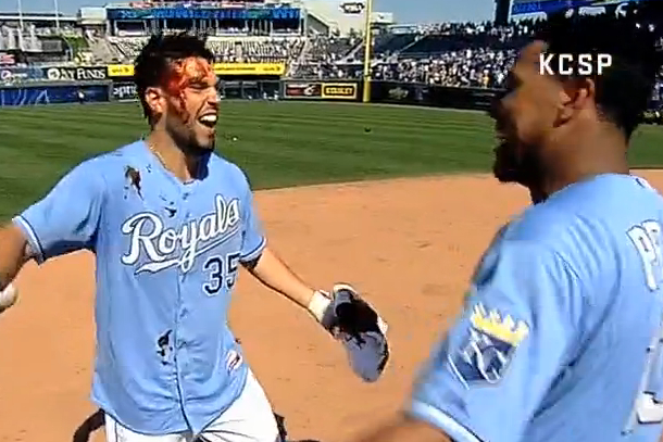 hosmer single guys See and share hundreds of eric hosmer on every time we've got guys on base we're eric hosmer started the # royals charge with an rbi single tonight.
